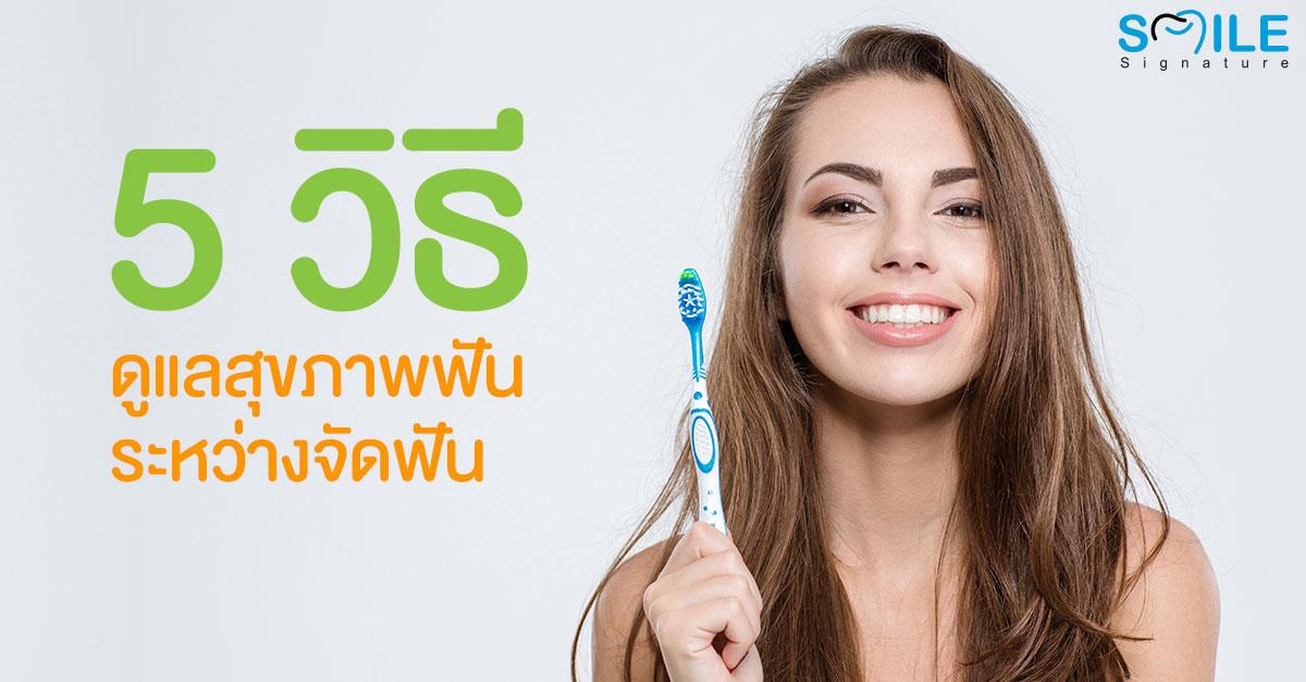 ดูแลฟัน ระหว่างจัดฟัน