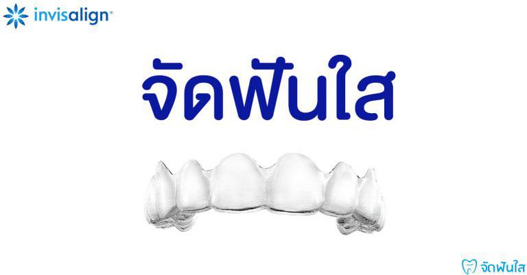 จัดฟันใสคืออะไร