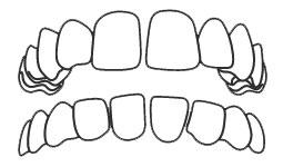 ฟันห่าง