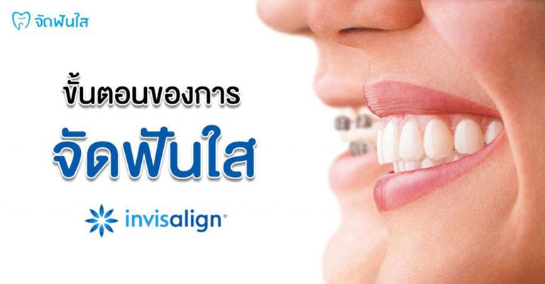 ขั้นตอนการจัดฟันใส invisalign