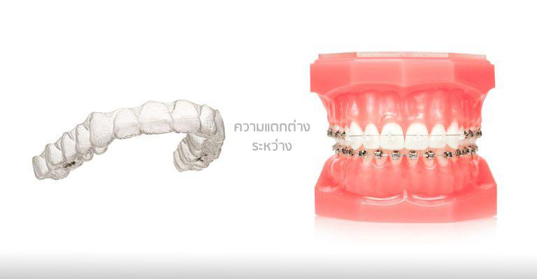 ความแตกต่างระหว่างจัดฟันใสกับจัดฟันแบบติดแน่น-1