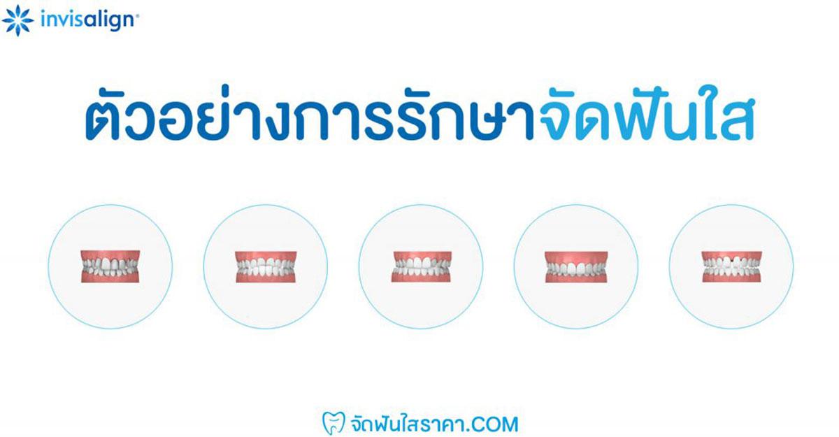 ตัวอย่างการจัดฟันแบบใส